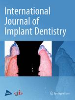 International Journal of Implant Dentistry
