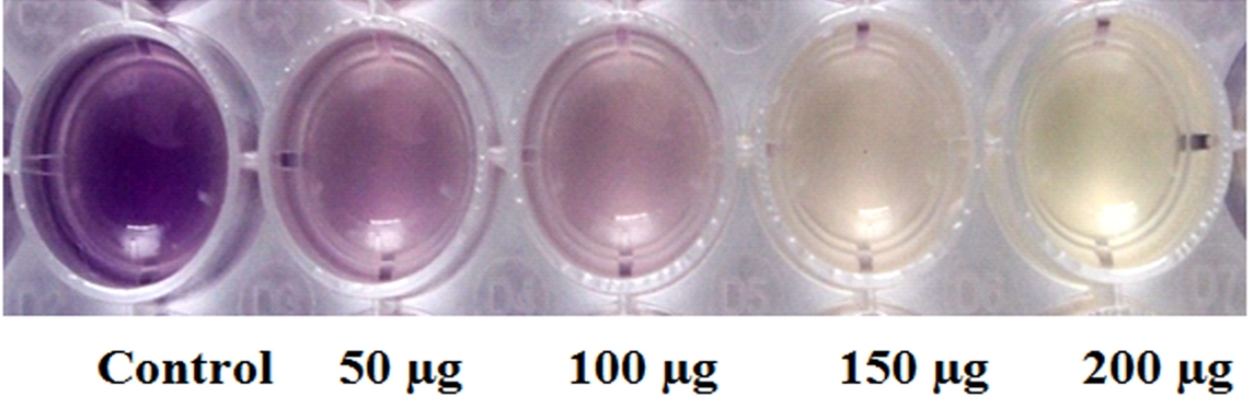 thesis on protease enzyme The role of proteolytic enzymes in the pathogenesis of emphysema g william atkinson number of protease inhibitors found in se ports the thesis that it does, but suggests.