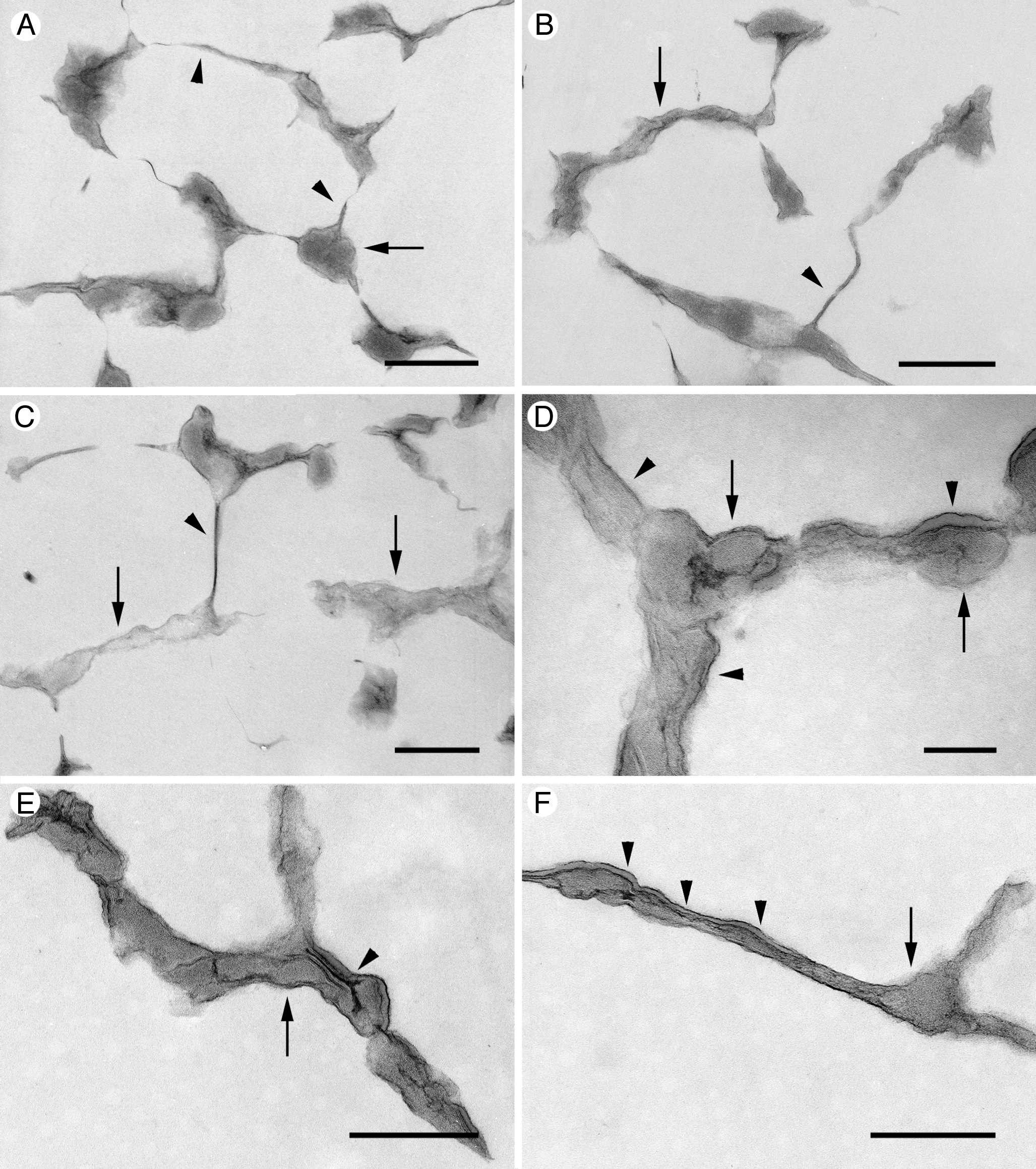 Characterization of structures in biofilms formed by a Pseudomonas ...