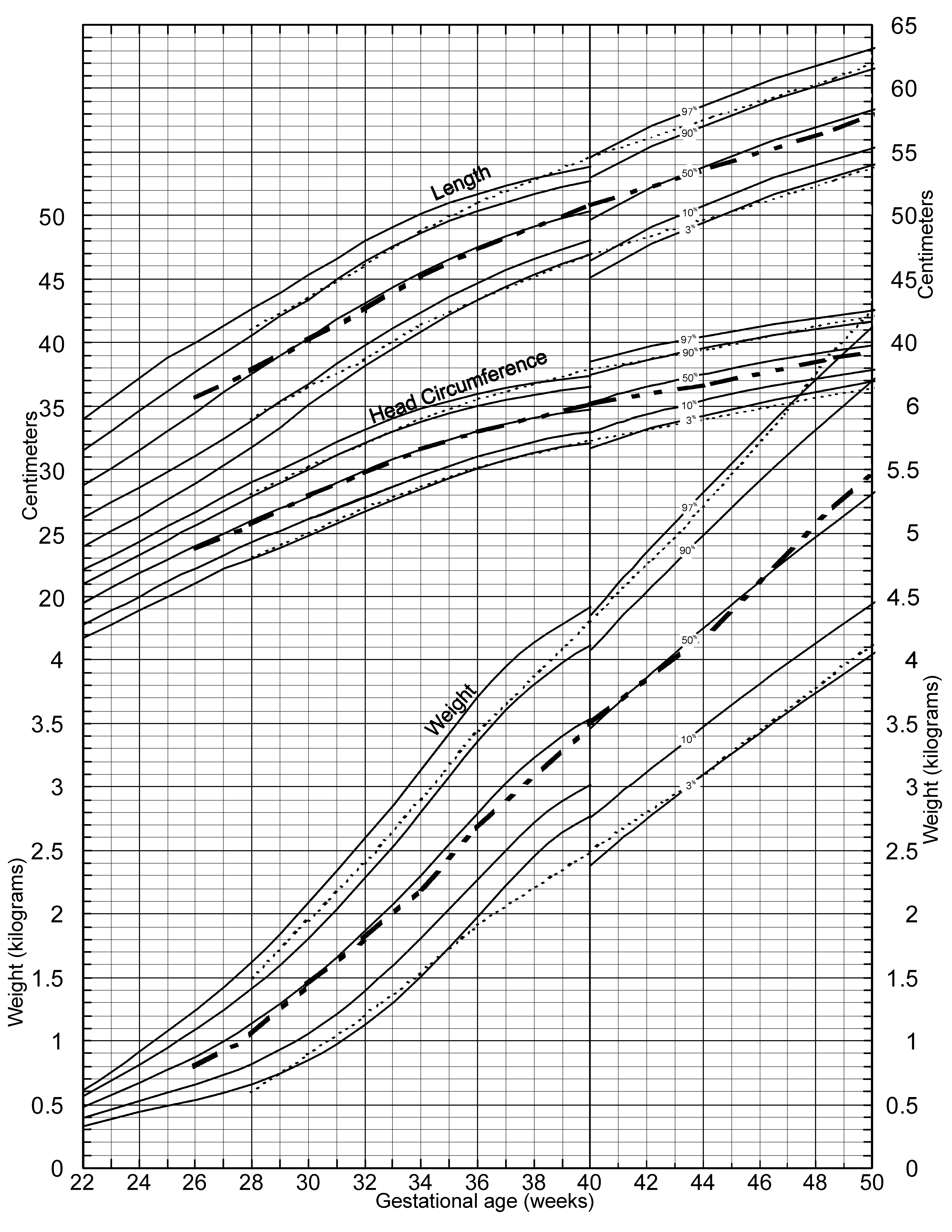 A new growth chart for preterm babies babson and bendas chart 12887200327moesm3esmg geenschuldenfo Choice Image