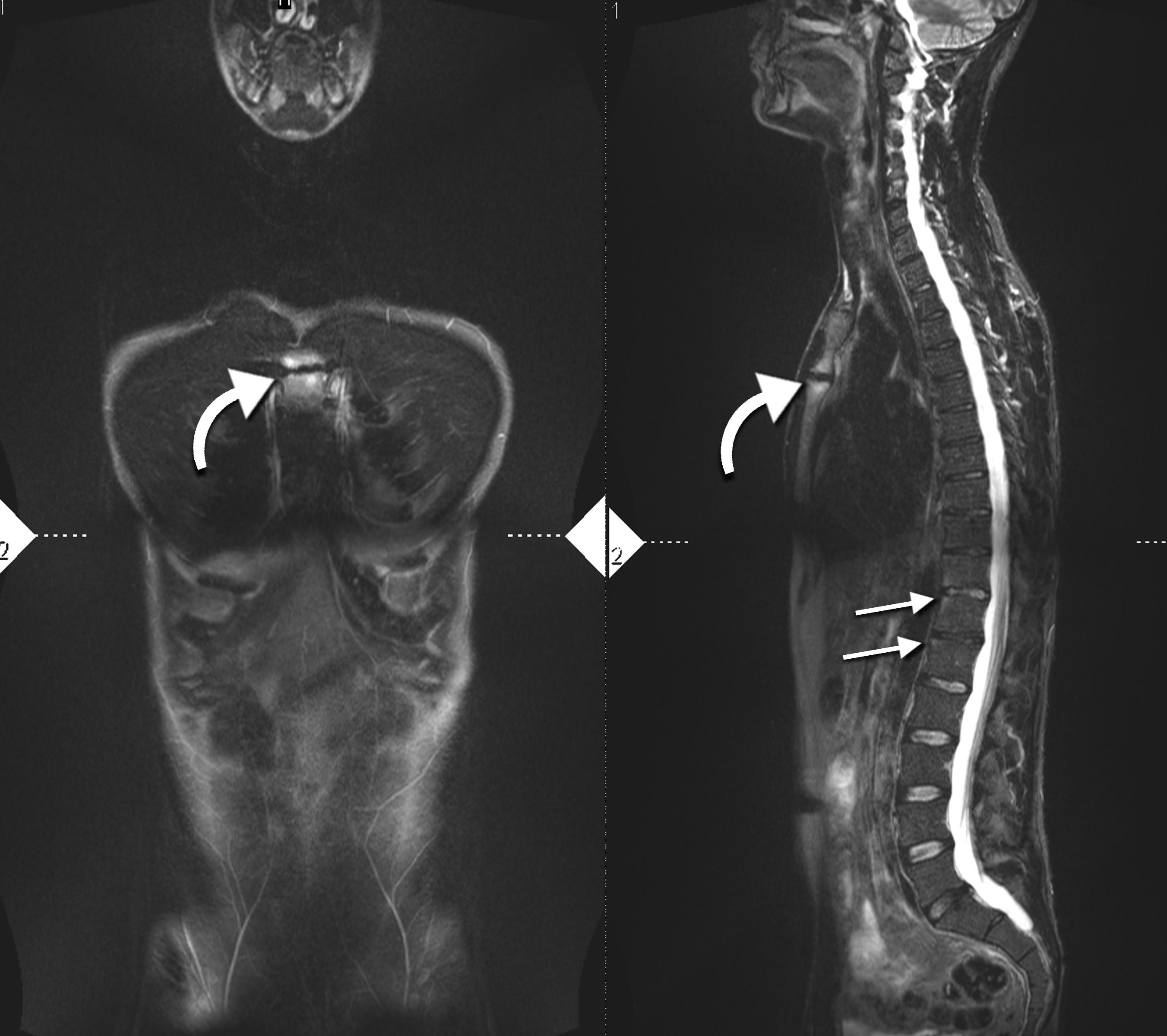 Ankylosing Spondylitis Mri
