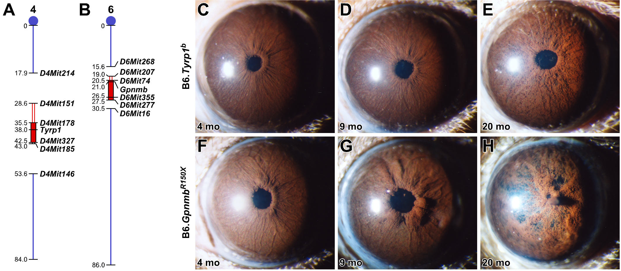 Genetic Context Determines Susceptibility To Intraocular
