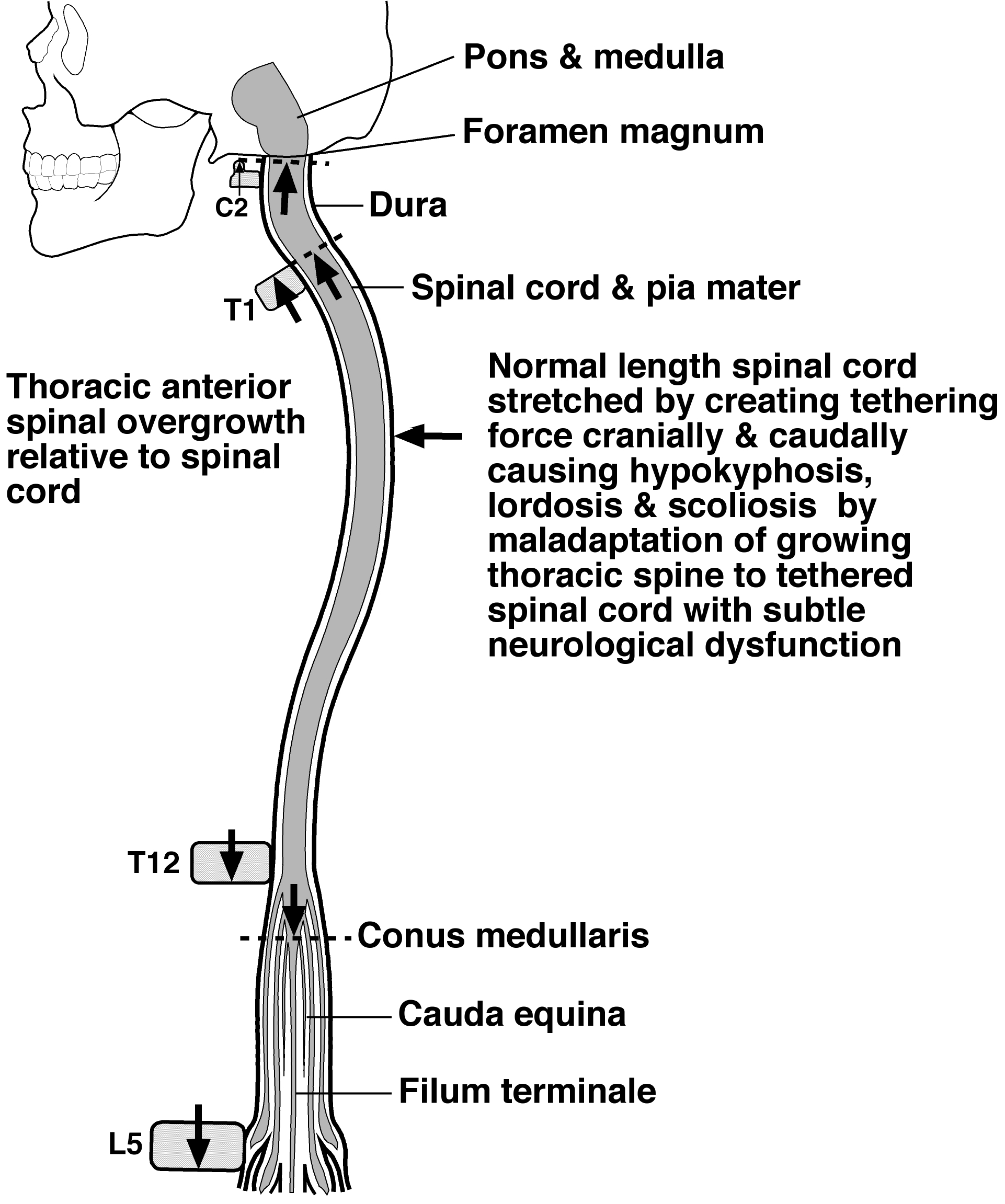 Relative shortening and functional tethering of spinal cord in 130132008110moesm1esmeg pooptronica