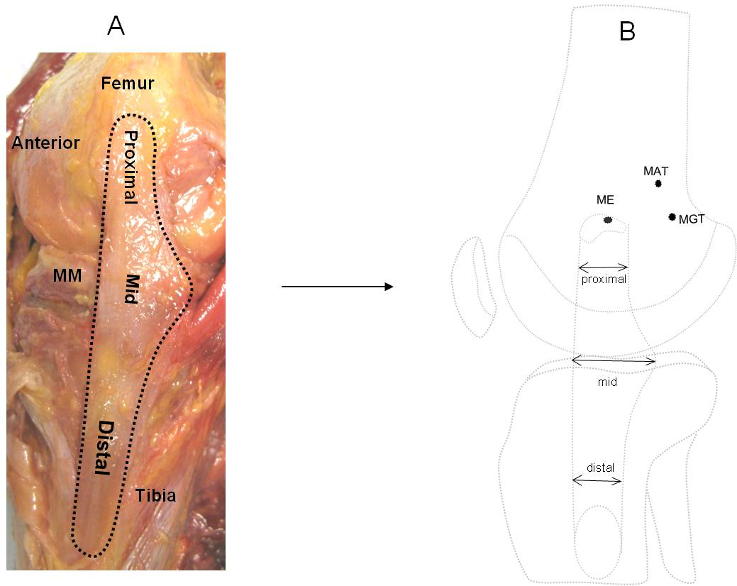 Morphology of the medial collateral ligament of the knee journal 130182010211moesm2esmeg pooptronica Image collections