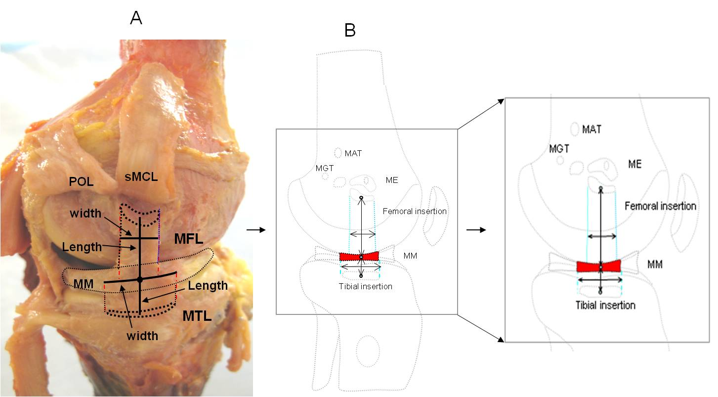 Morphology of the medial collateral ligament of the knee journal 130182010211moesm5esmeg pooptronica Image collections