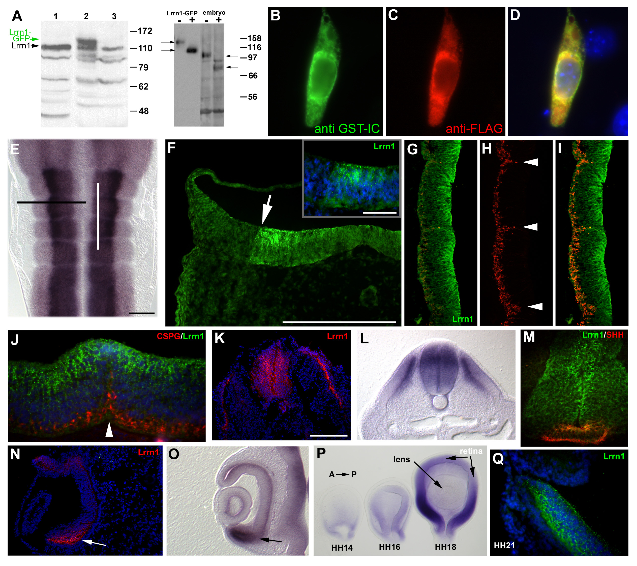 an analysis of capricious Functional dissection of drosophila capricious: functional analysis of the intracellular domain of target recognition molecule the capricious.