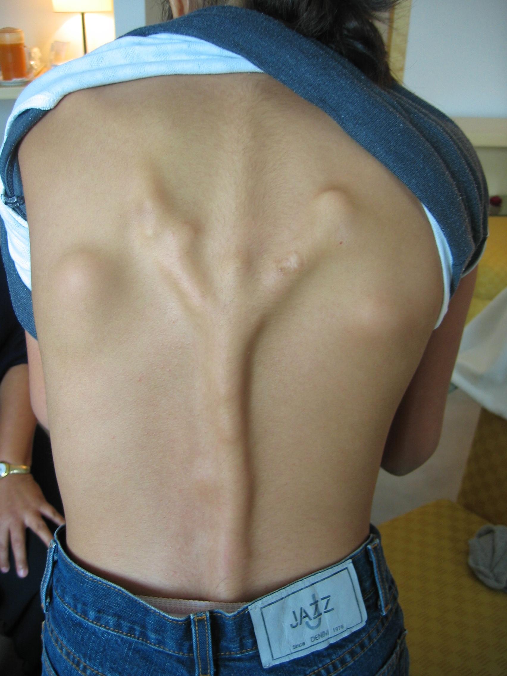 Autoimmune Blistering Diseases - NORD (National ...