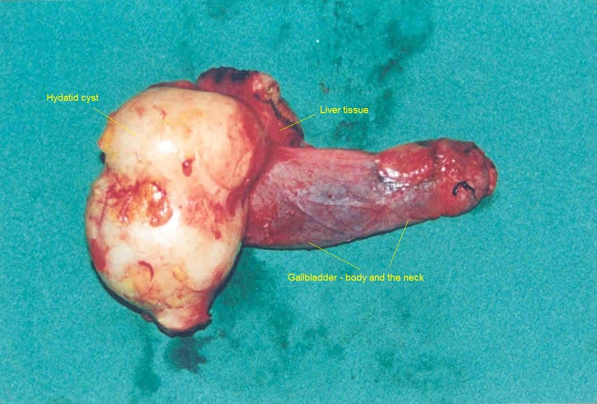 Primary Hydatid Cyst Of The Gallbladder A Case Report