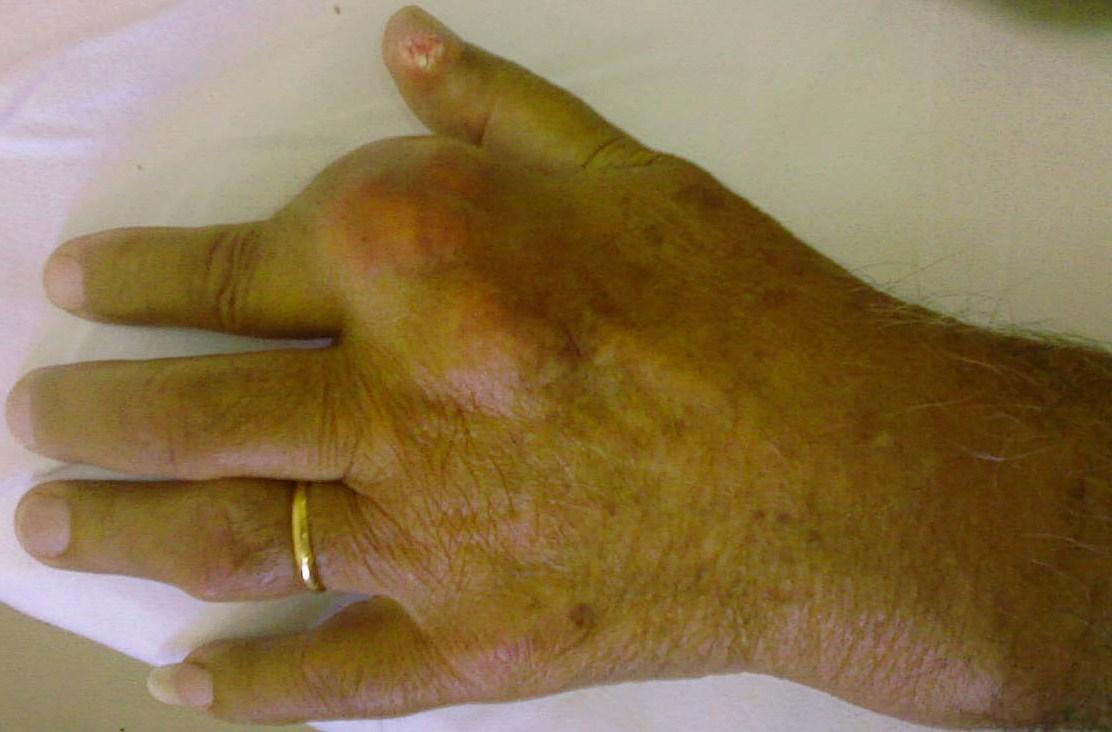 high uric acid heart disease home remedy to help gout stabbing pain on top of foot gout