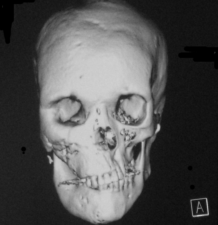 mr and ct findings of cyst degeneration of sphenoid bone in mccune, Human Body