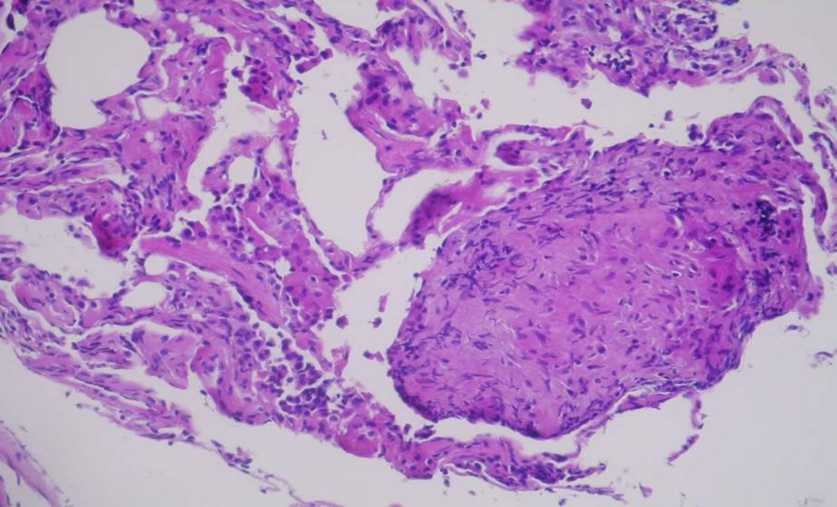 sarcoidosis case study