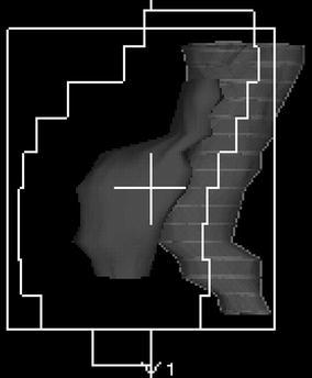 https://static-content.springer.com/image/art%3A10.1007%2Fs10147-010-0109-y/MediaObjects/10147_2010_109_Fig1_HTML.jpg