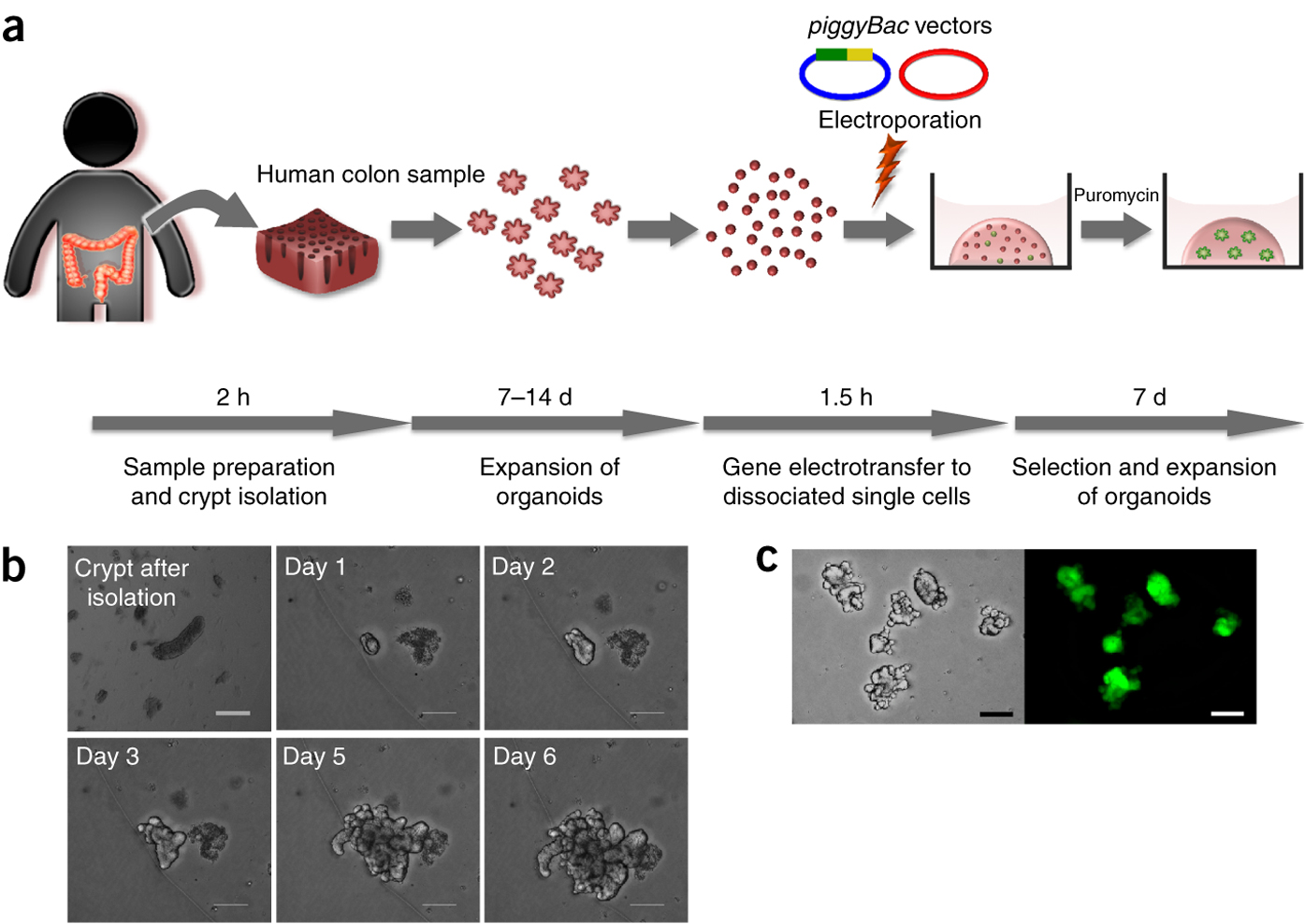 An overview of gene delivery to human intestinal organoids.