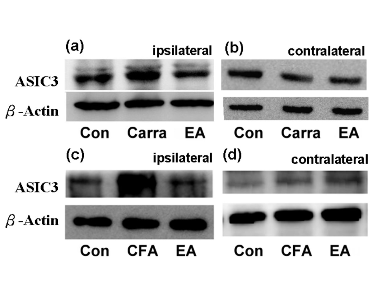 https://static-content.springer.com/image/art%3A10.1186%2F1423-0127-18-82/MediaObjects/12929_2011_Article_333_Fig4_HTML.jpg