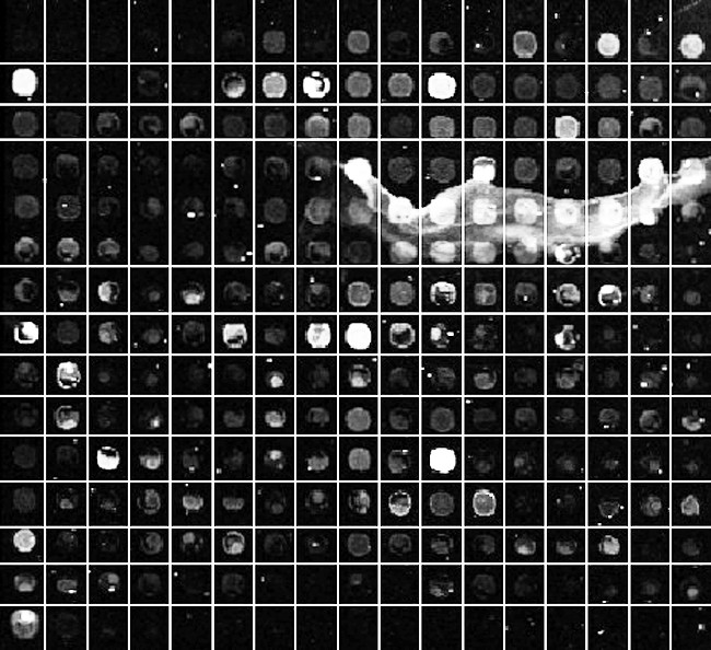 https://static-content.springer.com/image/art%3A10.1186%2F1471-2105-12-113/MediaObjects/12859_2010_Article_4507_Fig4_HTML.jpg