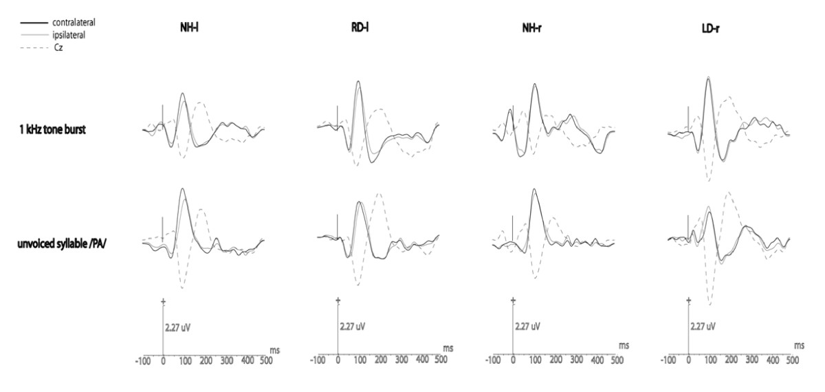 https://static-content.springer.com/image/art%3A10.1186%2F1471-2202-10-23/MediaObjects/12868_2008_Article_1027_Fig3_HTML.jpg
