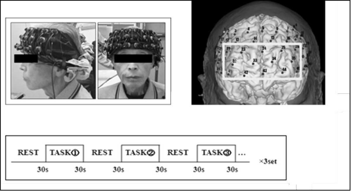 https://static-content.springer.com/image/art%3A10.1186%2F1471-2202-14-10/MediaObjects/12868_2012_Article_2837_Fig1_HTML.jpg
