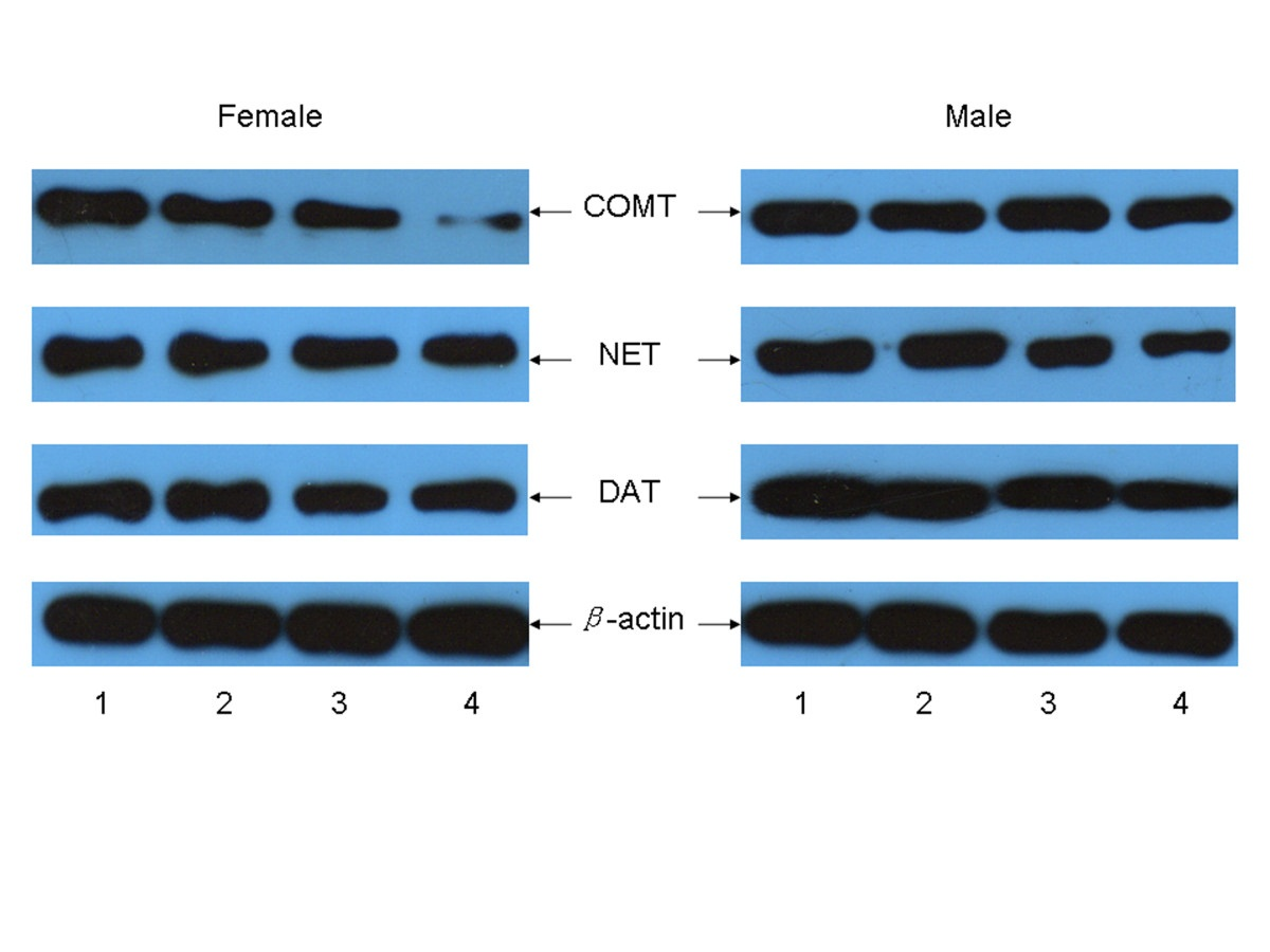 https://static-content.springer.com/image/art%3A10.1186%2F1471-2202-14-67/MediaObjects/12868_2013_Article_3371_Fig5_HTML.jpg