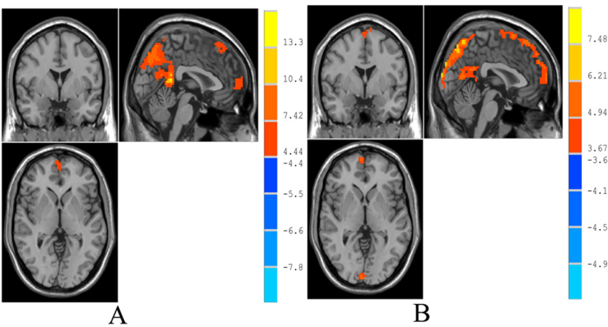 https://static-content.springer.com/image/art%3A10.1186%2F1471-2202-14-69/MediaObjects/12868_2012_Article_3375_Fig1_HTML.jpg