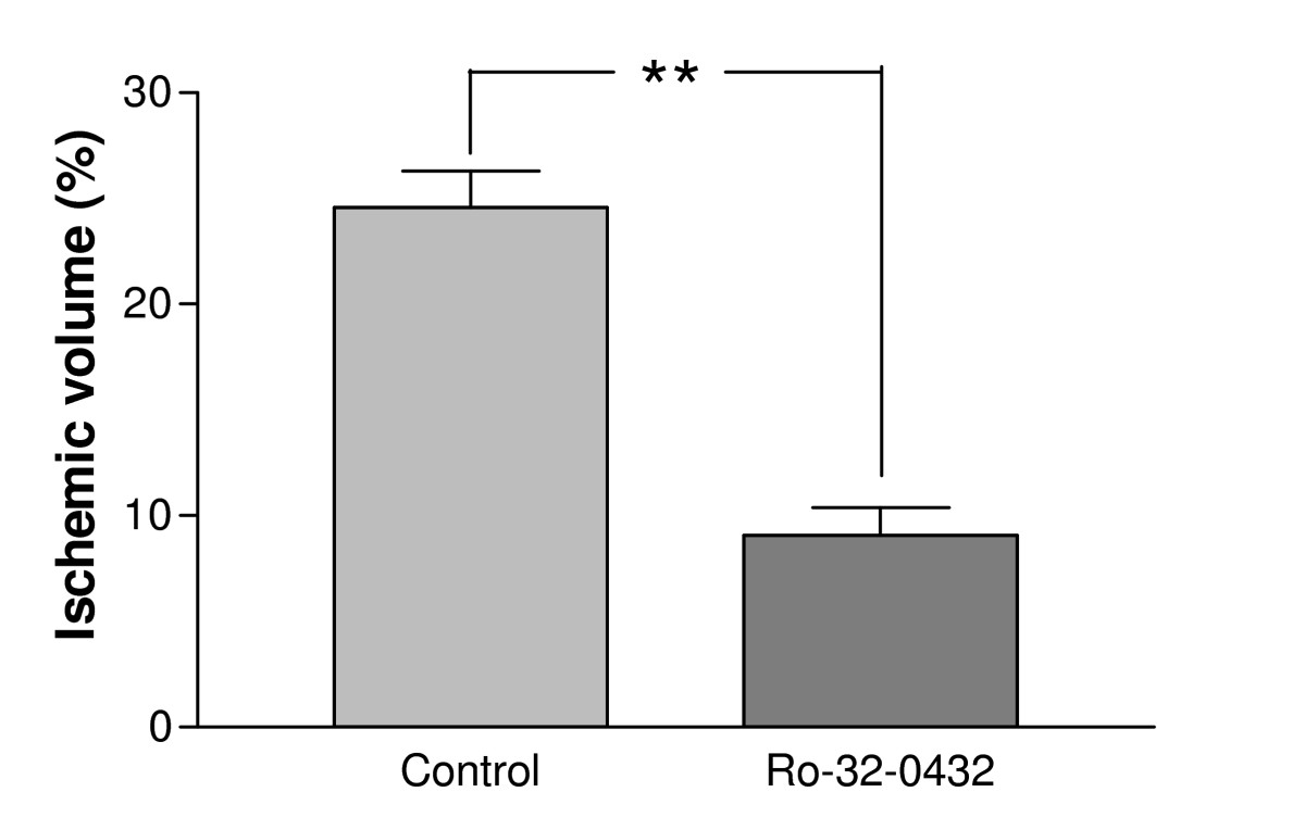 https://static-content.springer.com/image/art%3A10.1186%2F1471-2202-8-7/MediaObjects/12868_2006_Article_305_Fig1_HTML.jpg