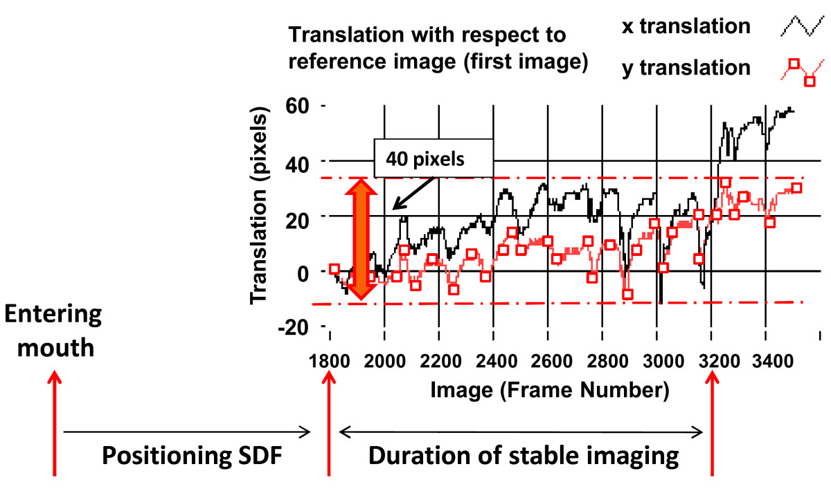 https://static-content.springer.com/image/art%3A10.1186%2F1471-2342-10-15/MediaObjects/12880_2010_Article_92_Fig1_HTML.jpg