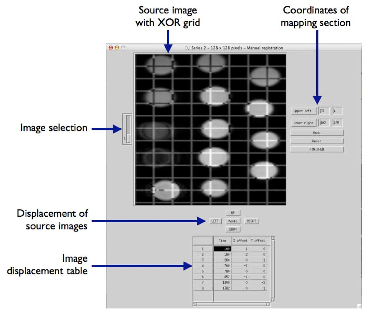 https://static-content.springer.com/image/art%3A10.1186%2F1471-2342-10-16/MediaObjects/12880_2010_Article_93_Fig2_HTML.jpg