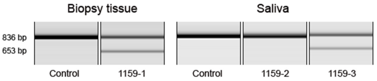 https://static-content.springer.com/image/art%3A10.1186%2F1471-2350-12-87/MediaObjects/12881_2010_Article_818_Fig3_HTML.jpg