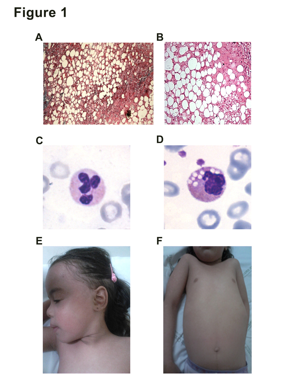 https://static-content.springer.com/image/art%3A10.1186%2F1471-2350-15-32/MediaObjects/12881_2013_Article_1271_Fig1_HTML.jpg