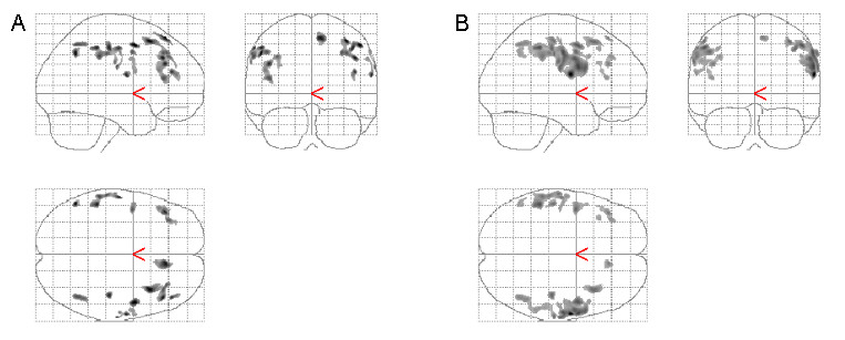 https://static-content.springer.com/image/art%3A10.1186%2F1471-2377-6-17/MediaObjects/12883_2006_Article_17_Fig3_HTML.jpg