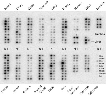 https://static-content.springer.com/image/art%3A10.1186%2F1471-2407-11-14/MediaObjects/12885_2009_Article_2507_Fig1_HTML.jpg
