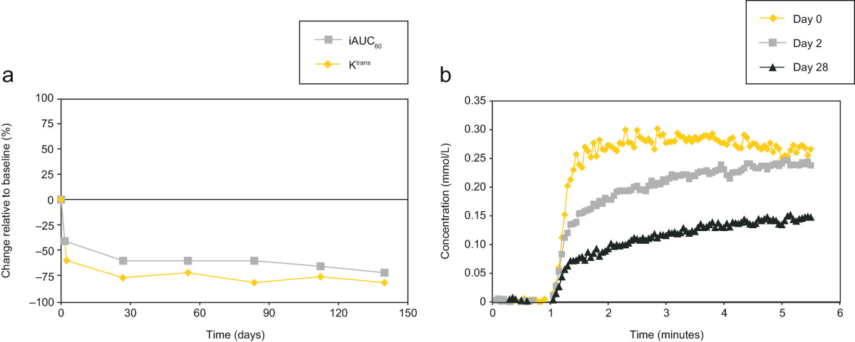 https://static-content.springer.com/image/art%3A10.1186%2F1471-2407-14-510/MediaObjects/12885_2013_Article_4681_Fig2_HTML.jpg