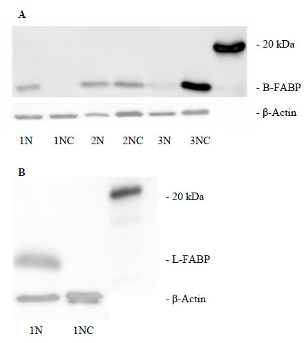 https://static-content.springer.com/image/art%3A10.1186%2F1471-2407-9-248/MediaObjects/12885_2009_Article_1582_Fig4_HTML.jpg