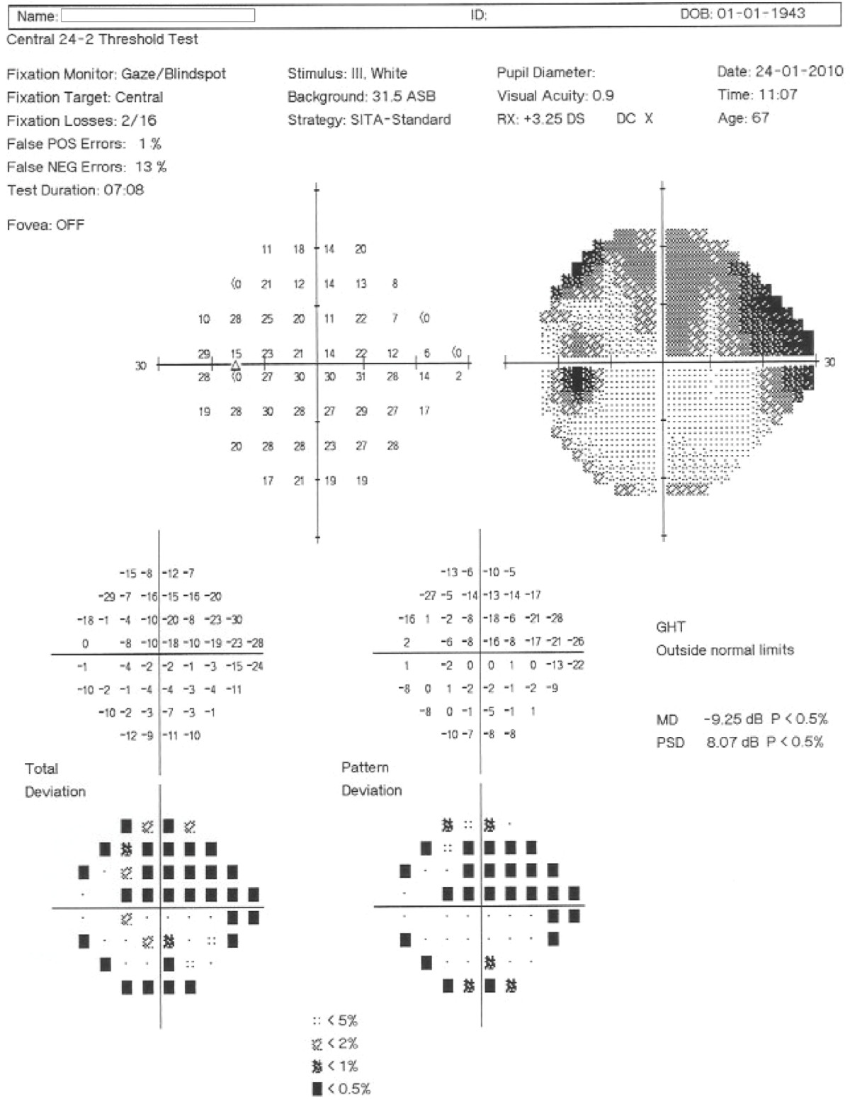 https://static-content.springer.com/image/art%3A10.1186%2F1471-2415-12-54/MediaObjects/12886_2012_Article_281_Fig1_HTML.jpg