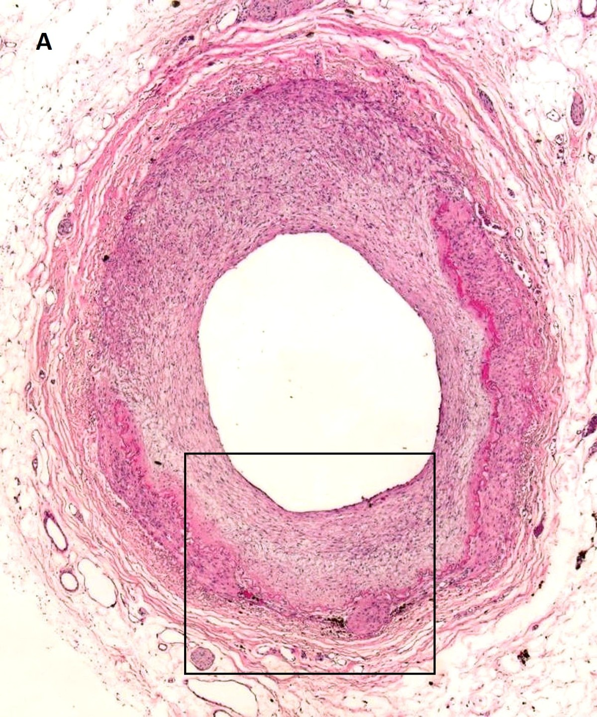 https://static-content.springer.com/image/art%3A10.1186%2F1472-6890-13-26/MediaObjects/12907_2012_Article_199_Fig1_HTML.jpg