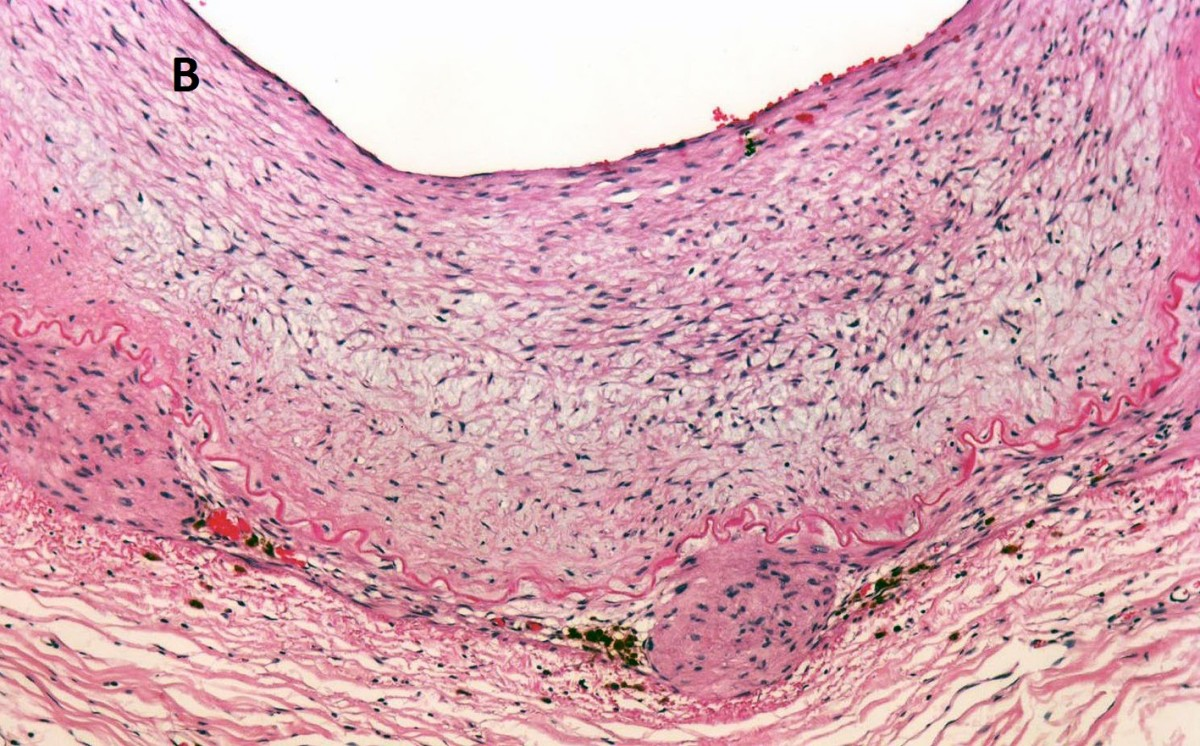 https://static-content.springer.com/image/art%3A10.1186%2F1472-6890-13-26/MediaObjects/12907_2012_Article_199_Fig2_HTML.jpg