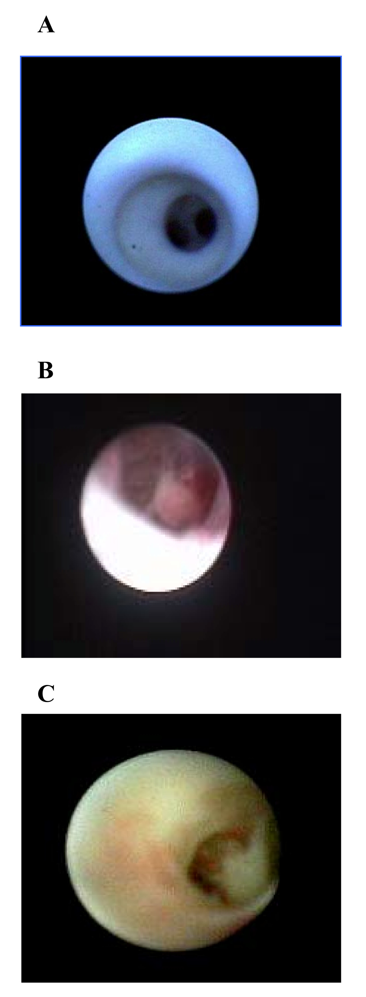 https://static-content.springer.com/image/art%3A10.1186%2F1477-7800-3-16/MediaObjects/12956_2006_Article_47_Fig2_HTML.jpg
