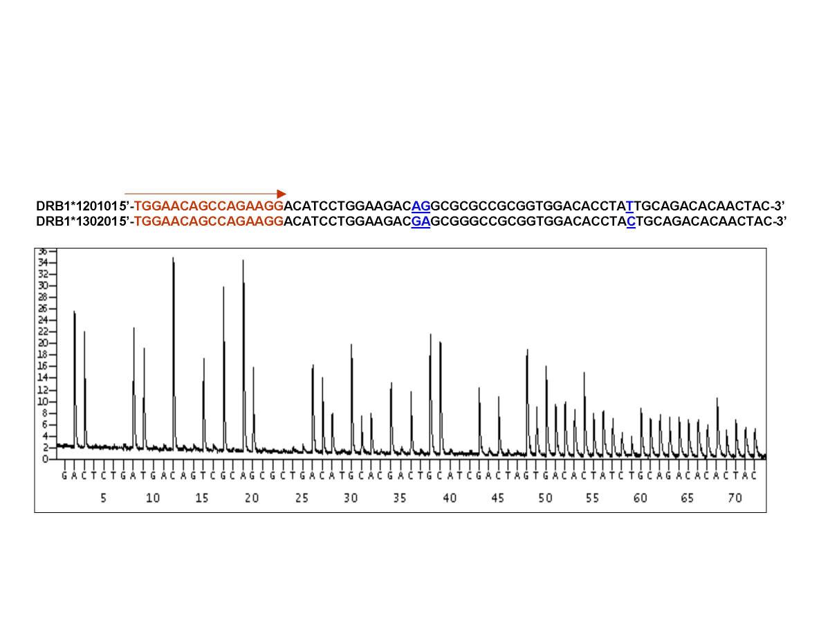 https://static-content.springer.com/image/art%3A10.1186%2F1479-5876-1-9/MediaObjects/12967_2003_Article_9_Fig5_HTML.jpg