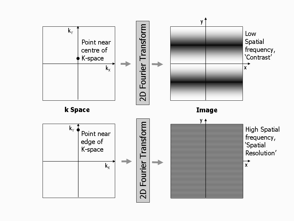 https://static-content.springer.com/image/art%3A10.1186%2F1532-429X-12-71/MediaObjects/12968_2010_Article_1442_Fig13_HTML.jpg
