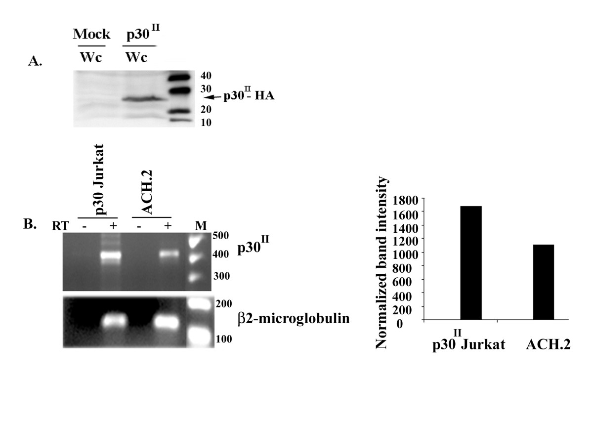 https://static-content.springer.com/image/art%3A10.1186%2F1742-4690-4-49/MediaObjects/12977_2007_Article_778_Fig1_HTML.jpg