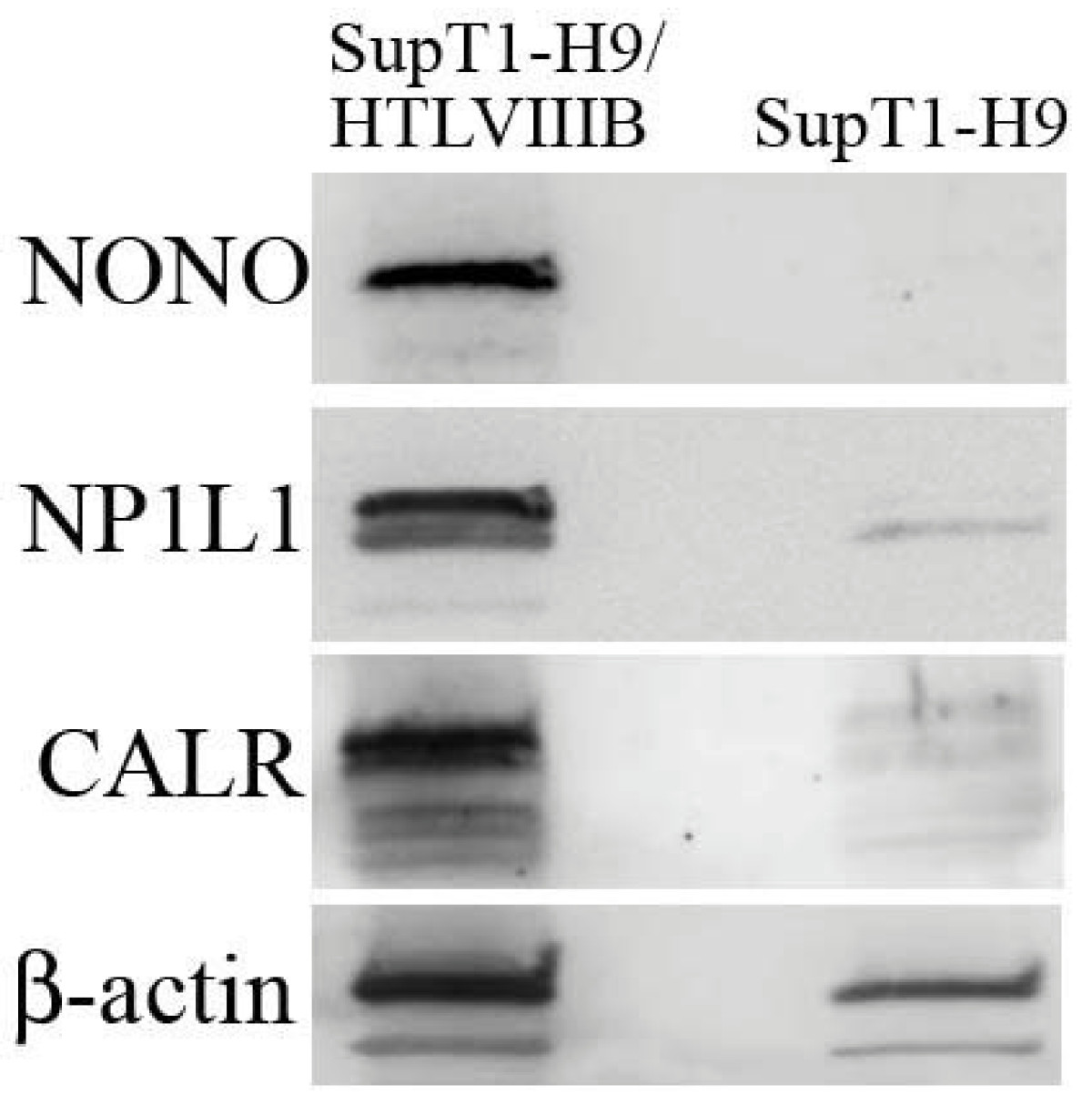 https://static-content.springer.com/image/art%3A10.1186%2F1742-4690-7-66/MediaObjects/12977_2010_Article_1869_Fig4_HTML.jpg