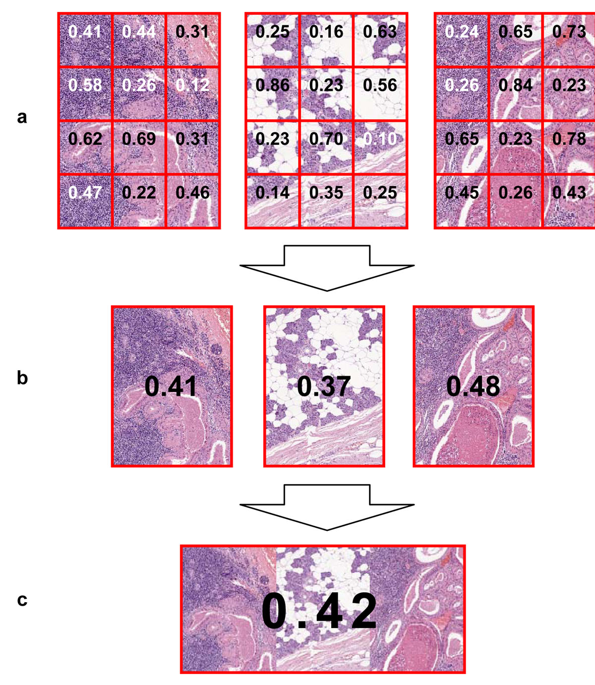 https://static-content.springer.com/image/art%3A10.1186%2F1746-1596-6-S1-S14/MediaObjects/13000_2011_Article_384_Fig6_HTML.jpg