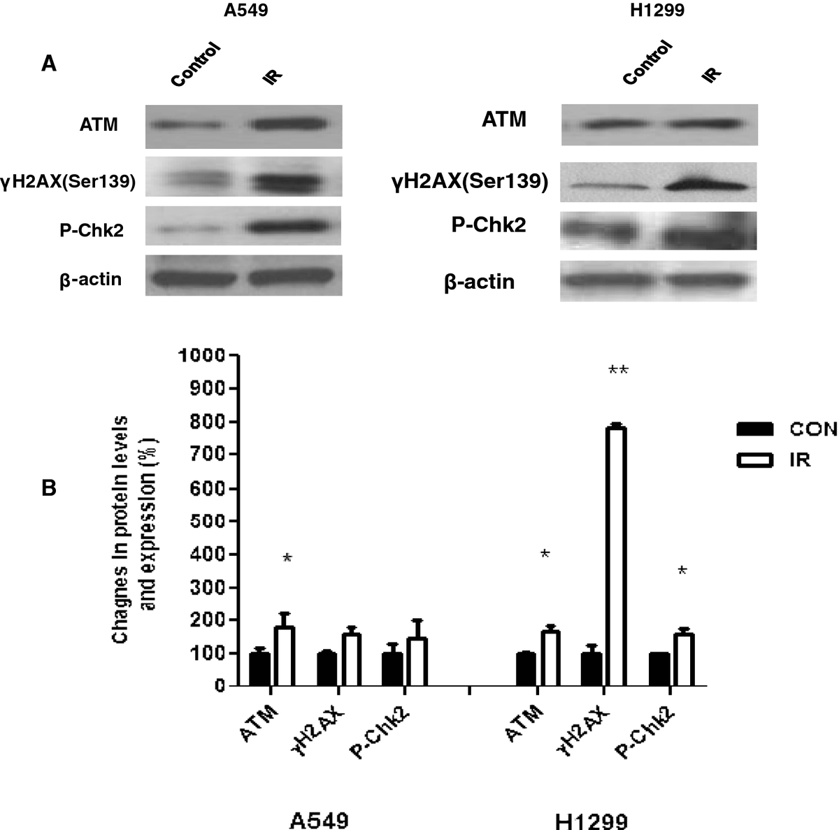 the effect of atm on the Numerous in vitro studies have shown that human cell lines lacking functional atm are extremely radiosensitive in this issue, moding et al demonstrate using a murine model of sarcoma that deletion of the atm gene has much less of a radiosensitizing effect on normal cardiac endothelia than on rapidly proliferating tumor endothelia.