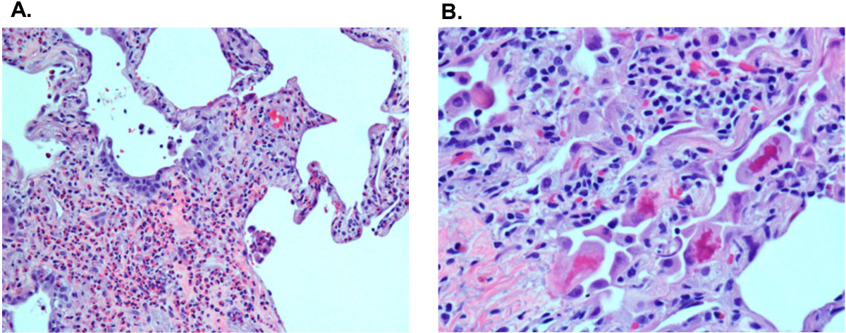 https://static-content.springer.com/image/art%3A10.1186%2F1752-1947-6-413/MediaObjects/13256_2012_Article_2376_Fig2_HTML.jpg