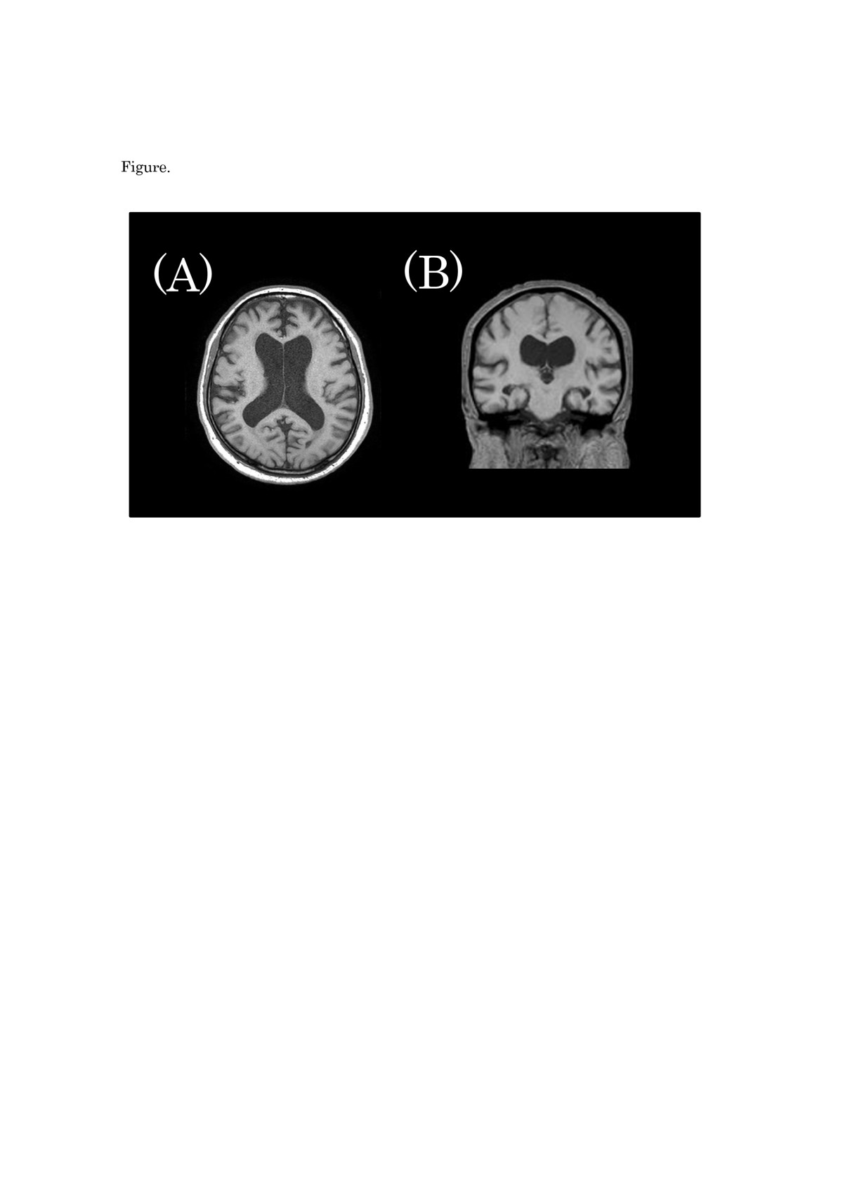 https://static-content.springer.com/image/art%3A10.1186%2F1752-1947-7-94/MediaObjects/13256_2012_Article_2491_Fig1_HTML.jpg