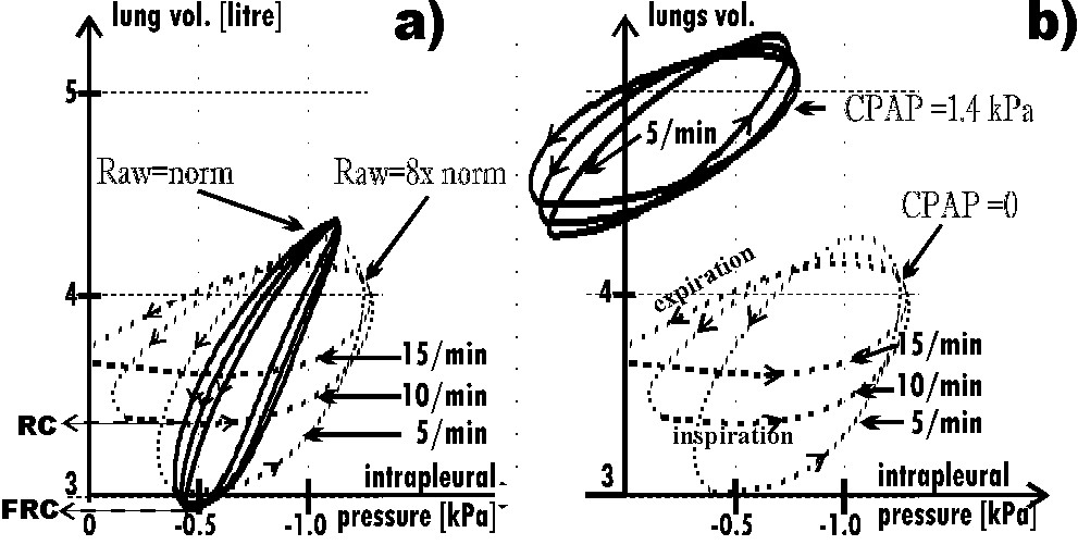https://static-content.springer.com/image/art%3A10.1186%2F1753-4631-1-6/MediaObjects/13035_2007_Article_6_Fig5_HTML.jpg