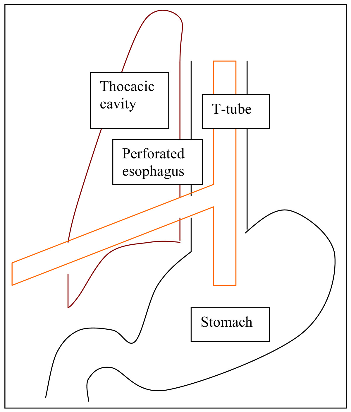 https://static-content.springer.com/image/art%3A10.1186%2F1754-9493-3-19/MediaObjects/13037_2009_Article_60_Fig4_HTML.jpg