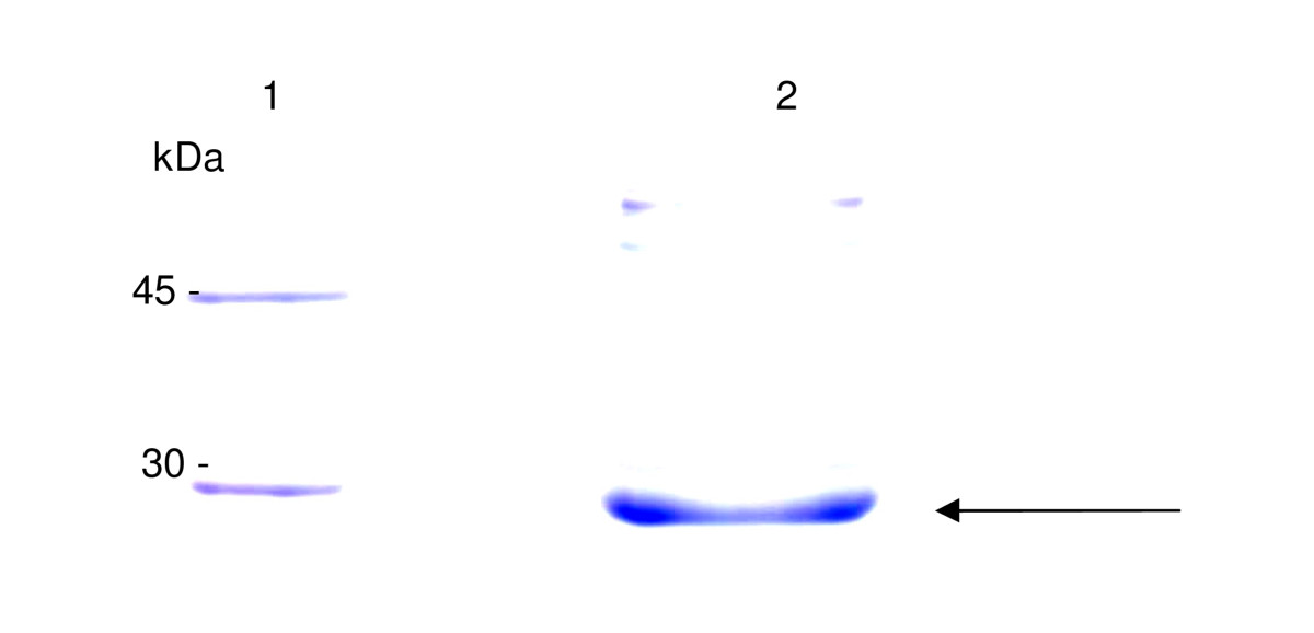 https://static-content.springer.com/image/art%3A10.1186%2F1756-0500-4-30/MediaObjects/13104_2010_Article_779_Fig4_HTML.jpg