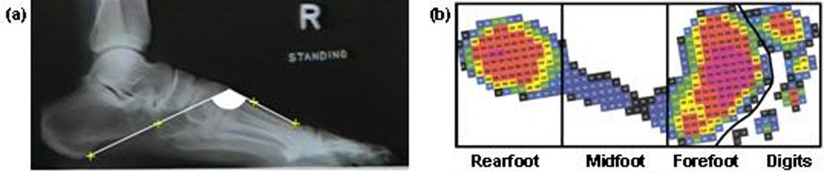 https://static-content.springer.com/image/art%3A10.1186%2F1757-1146-5-S1-O54/MediaObjects/13047_2012_Article_421_Fig1_HTML.jpg