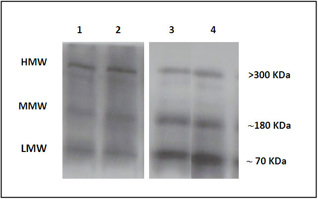https://static-content.springer.com/image/art%3A10.1186%2F1758-5996-5-20/MediaObjects/13098_2012_Article_208_Fig1_HTML.jpg