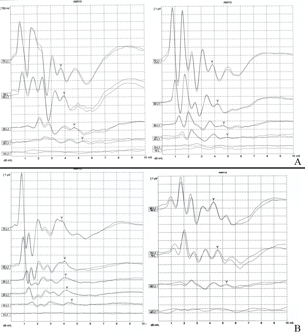 https://static-content.springer.com/image/art%3A10.1186%2F1916-0216-42-13/MediaObjects/40463_2012_Article_6_Fig2_HTML.jpg